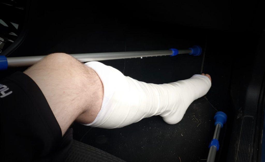 Der Fuß mit der gerissenen Achillessehne